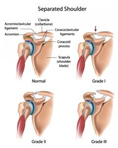 Separated Shoulder Anatomical Diagram