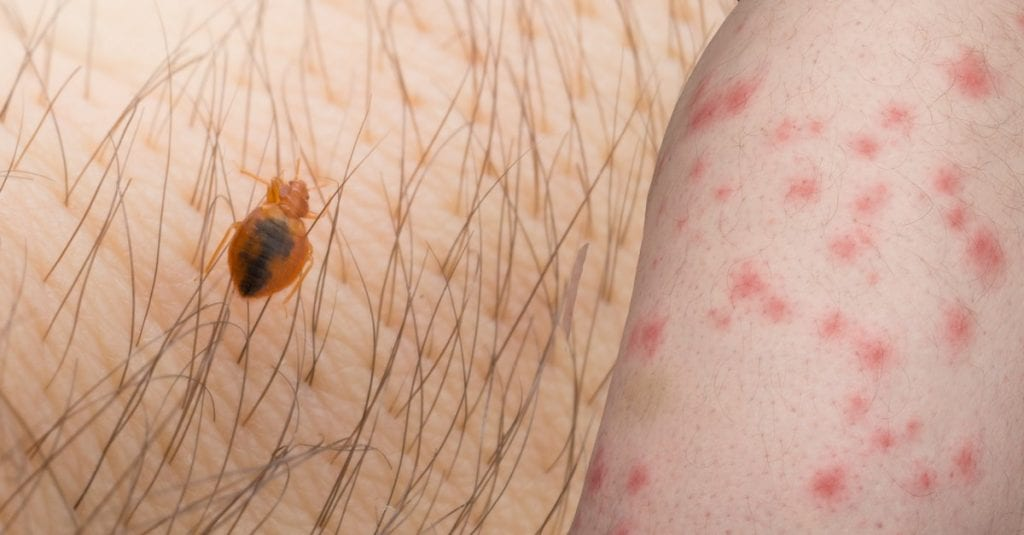 Bed Bug Bites, How To Identify And Treatment